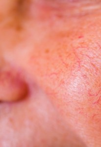 Facial Spider Veins