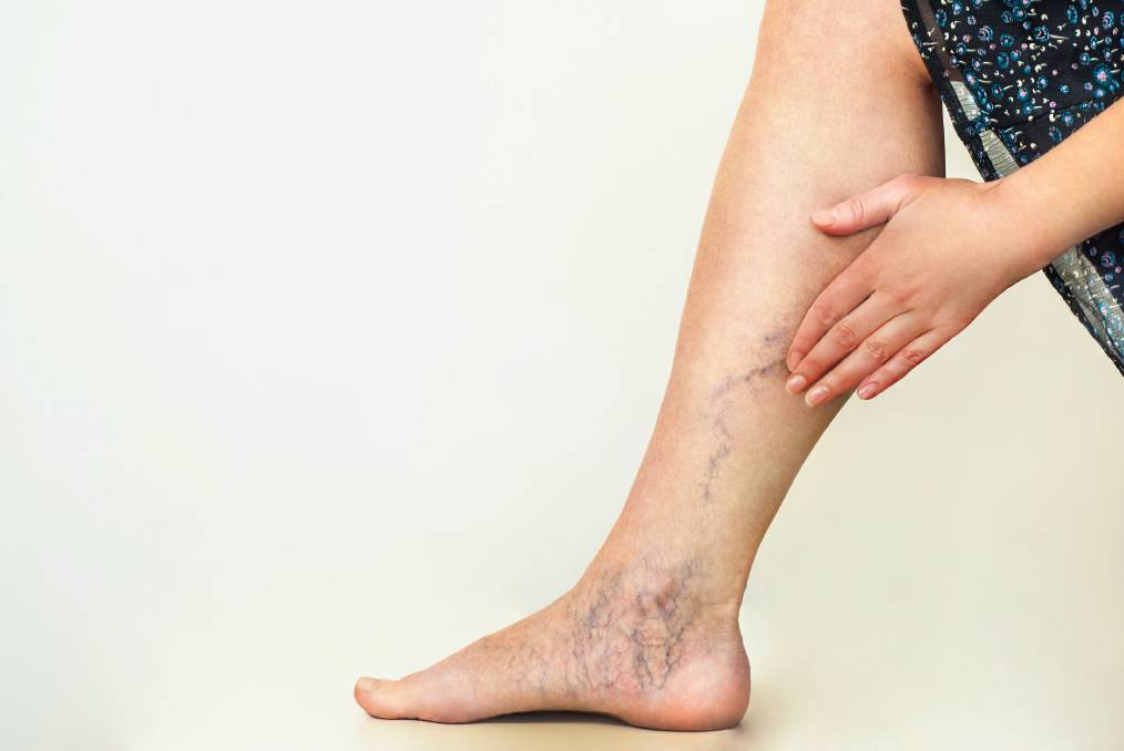 When does Vein Treatment Qualify for Insurance Coverage?