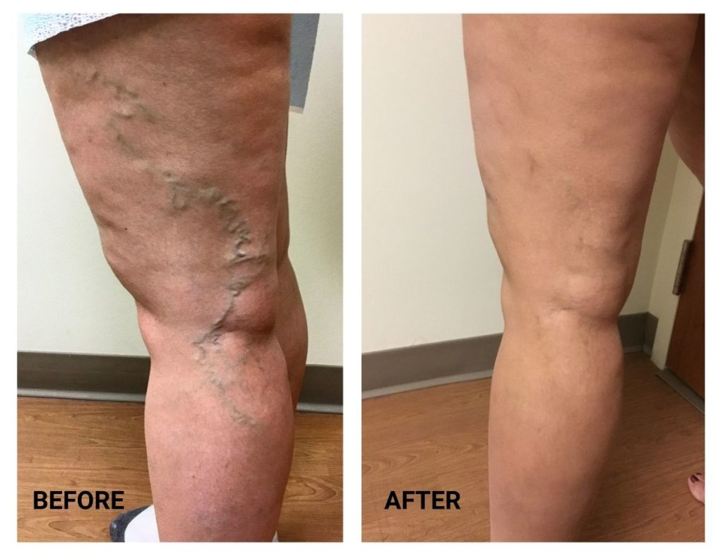 Before and After dark vein removal