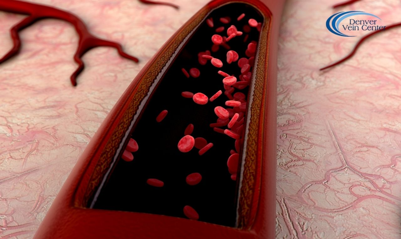 Broken Blood Vessels in the Face